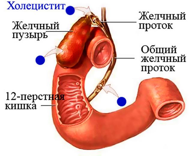 Различные заболевания и патологические процессы, развивающиеся в желчном пузыре, могут негативно влиять на здоровье всего организма