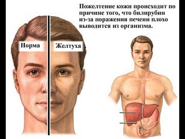 Желтуха - это заболевание, которое невозможно не заметить