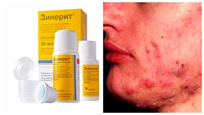 Зинерит также стимулирует регенерацию клеток кожи, помогая прыщам пройти быстрее и без риска появления пятен, следов и рубцов