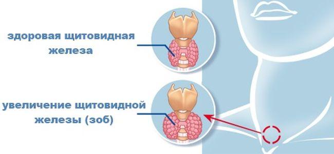 Здоровая и увеличенная щитовидная железа
