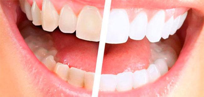 Очищение зубов с помощью метода пескоструйной обработки применяется для восстановления природного цвета эмали, который утрачен в результате курения или частого применения продуктов с красящими пигментами