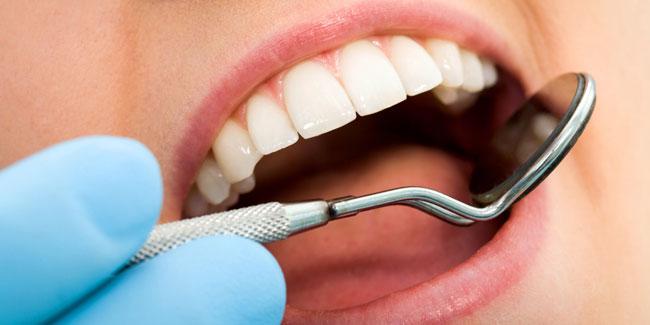 Формирование камня начинается с появления мягкой зубной бляшки, затем на бляшке откладываются минеральные соли, образующие центры кристаллизации, а в конце, когда кристаллов становится много, отложение полностью затвердевает и становится зубным камнем